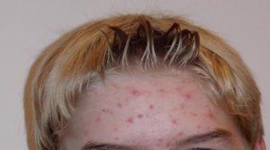 Acne: saiba como tratar acne e espinhas