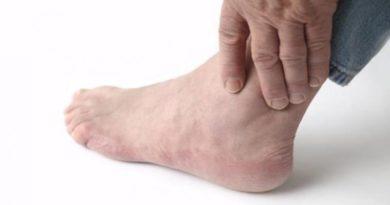 Ácido úrico: sintomas e como tratar